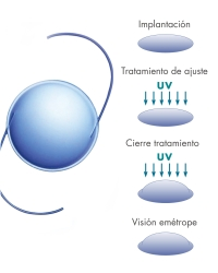 Lentes intraoculares autoregulables