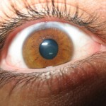 Reflexiones sobre el Glaucoma (II)