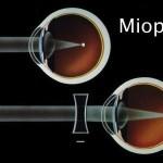 Doctor, tengo glaucoma y miopía: ¿Me puedo operar?