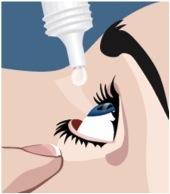 No puedes usar los colirios sin recomendación de tu oftalmólogo son un medicamento que puede tener efectos secundarios.