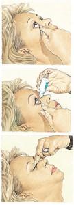 El colirio como medicamento su uso debe ser bajo la supervisión o prescripción de tu oftalmólogo.