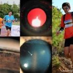 El glaucoma pigmentario….¡no corras!
