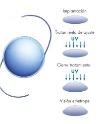 Lentes intraoculares autoregulables