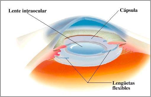 Implantación de las lentes intraoculares