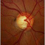 Entrevista sobre el glaucoma, prevención y tratamientos, Televisión de Torrevieja TVT