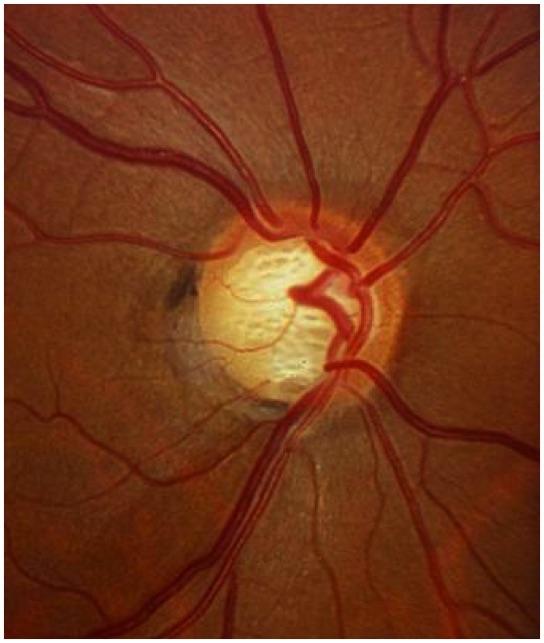 Qué es el Glaucoma - Especialista en Glaucoma