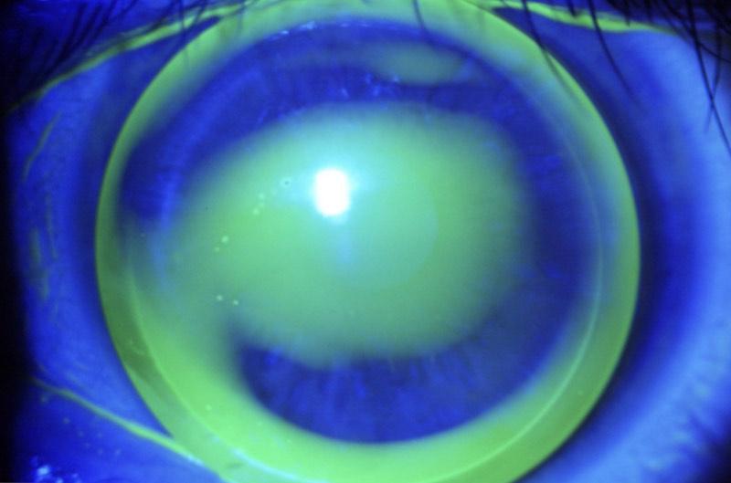 """""""Somos un equipo multidisciplinar de oftalmólogos que hemos montado una clínica en Torrevieja, única en esta zona, para dar un servicio de oftalmología en todas sus especialidades. Disponemos de especialistas de varios áreas de la oftalmología como glaucoma, cataratas, degeneración macular, retinopatía diabética, desprendimiento de retina, córnea y superficie ocular y oculoplástica. También tenemos servicio de medicina estética y facial y consulta de optometría."""""""